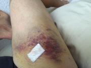Geprellter Oberschenkel nach fast zwei Wochen nach dem Unfall